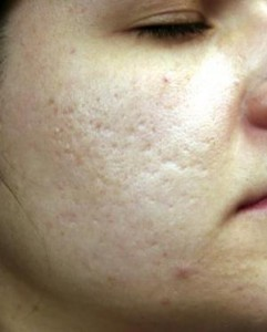 sublative-rejuvenation--case4-before1-09-19-2014-08-37-36