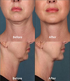 before-after-kybella-santa-monica